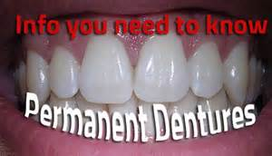 false teeth permanent picture 7