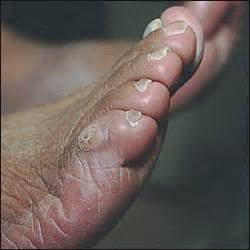 hip pain at leg joint and genital wart picture 2