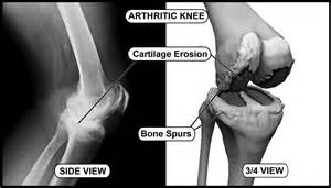 knee joint bone spurs growth time picture 5
