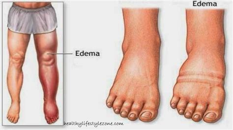 swollen ankles and gain weight picture 1