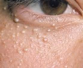 white pimples not acne picture 9