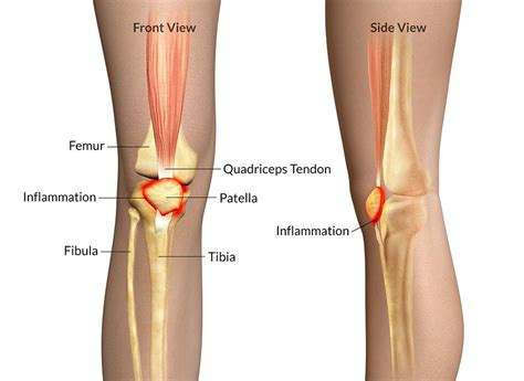 sports - knee joint picture 2