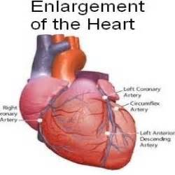 enlarged heart and hypothyroidism picture 10