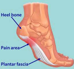 plantar picture 2