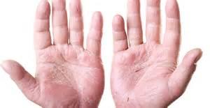 acne treatment reviews picture 15