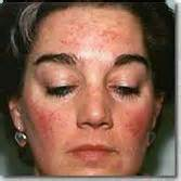 acne outbreaks picture 17