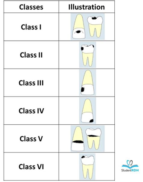 picture of h cavities picture 7