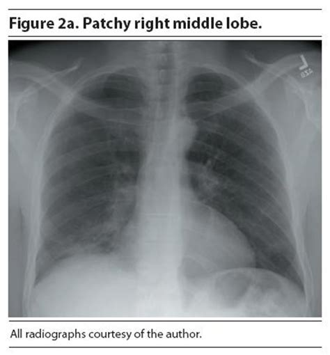 sensitivity and specificity of chest xray in diagnosing bacterial pneumonia picture 13