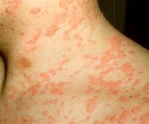 alergic skin reactoins to the sun picture 4