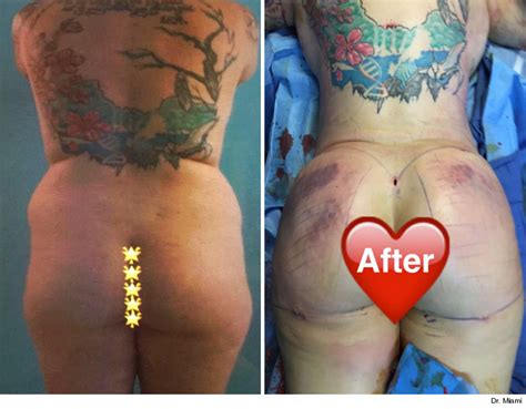 breast enhancement doctor dallas picture 5