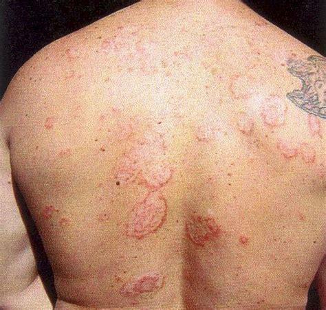 cat skin diseases picture 9