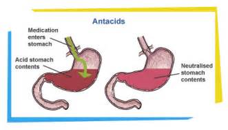 indigestion acid production picture 9