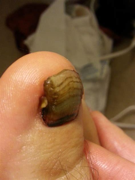 toenail fungus treatment vinegar picture 7