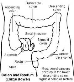 diagram descending colon picture 3