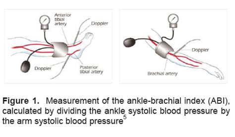 High blood pressure pain in arms and legs picture 12