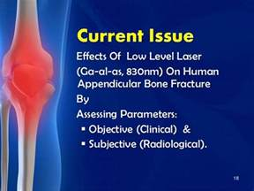 effects of bone fracture on circulation picture 1
