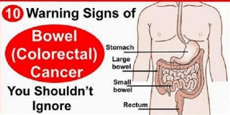 bladder cancer signs and symptoms picture 2