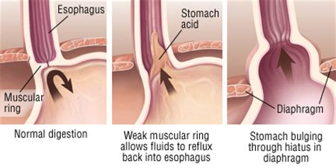 does colon cancer cause reflux picture 11