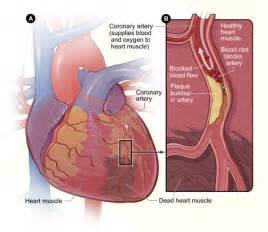 is thickening of your heart muscle deadly picture 10