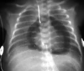 Cool...that will workbacterial lung infection picture 11