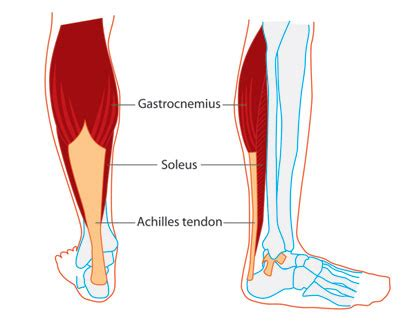 muscle spasm in calf picture 11