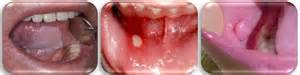 mouth cancer picture 2