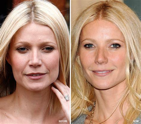 celebrity skin care regimen picture 10