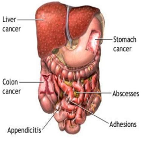 natural supplements after colon removal surgery picture 3
