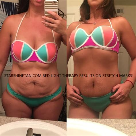 can mystic tan cover stretch marks picture 15