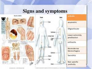 rheumatoid arthritis ka ayurvedic ilaj picture 1