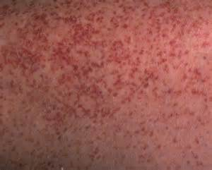 red blotch on skin that hurts picture 5