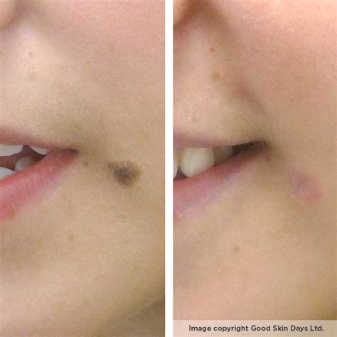 skin removal surgery picture 6