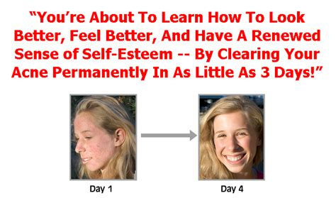 acne free in 3 days free picture 1