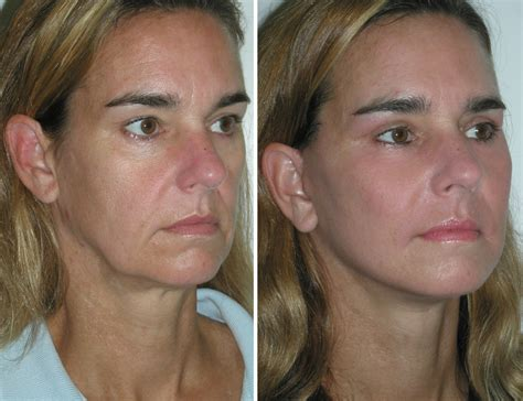 lower eyelid surgery muscle atrophy picture 1