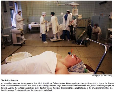 chernobyl and thyroid cancer worldwide picture 15