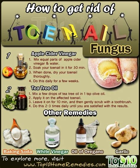 how to get rid of fungus toenails picture 1