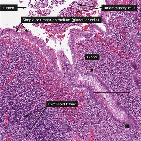 where is the colon located in the intestine picture 15