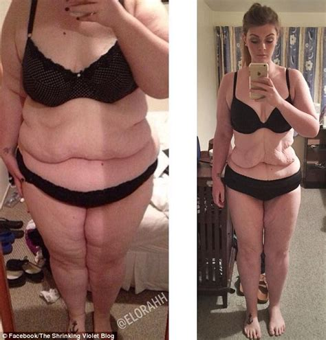 excess skin after weight loss picture 5