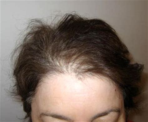 hair loss postpartum picture 6