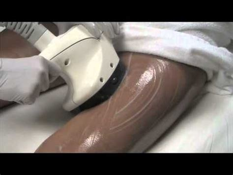 cellulite treatment san diego picture 13