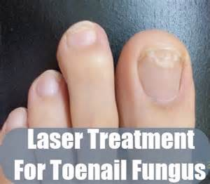 pinpoint laser for toenail fungus in utah picture 13