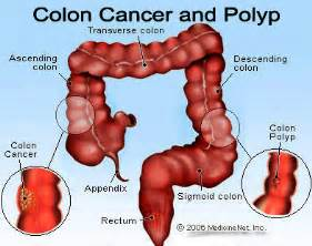 colon cancer in black women picture 17