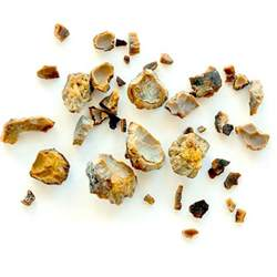 does testosterone cause kidney stones picture 11
