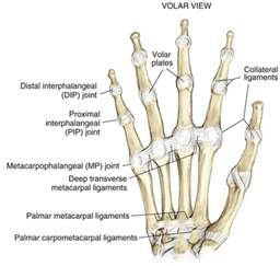 proximal joint pain picture 3