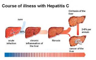 pics of human liver and hep c damage picture 1