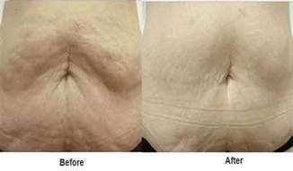 skin tightening 2014 abdomen picture 15