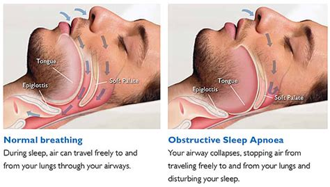how to start a business in sleep apnea picture 9