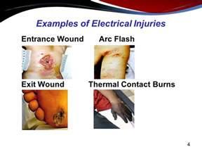 standard skin resistance picture 3