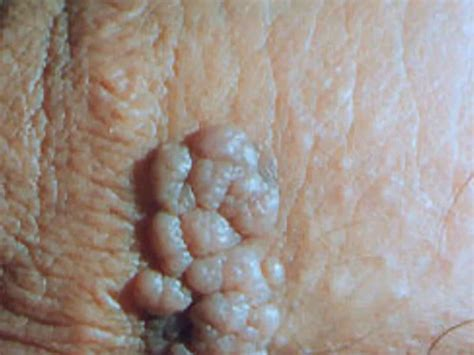 pill remove warts caused by hpv picture 9
