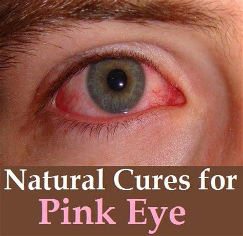 herbal remedies red eyes picture 9